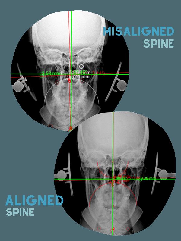 Chiropractic Washington DC Aligned Spine